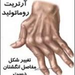 آرتريت روماتوئيد يا روماتيسم مفصلي وب سایت دکتر نقی حسینعلی زنجانی