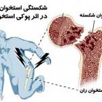 پوکی استخوان از وب سایت دکتر نقی حسینعلی زنجانی