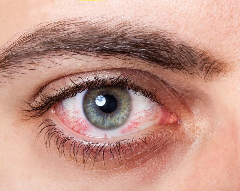 چشم و بیماری های روماتیمسی